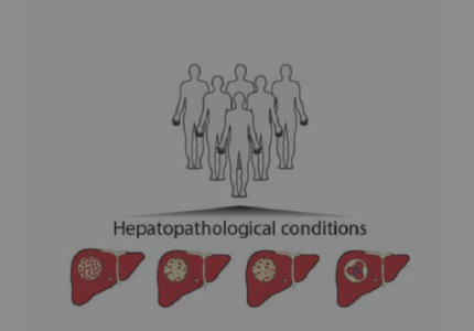 Proteomics outperforms established tests for detecting three stages of liver disease